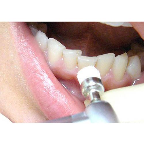 Как быстро очистить зубы от налета в домашних условиях - Санком НН